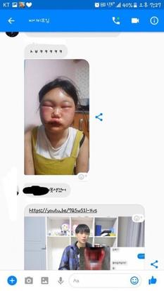 Korean teen brutally attacked by group of girls for having